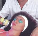 Laseroterapija mekih tkiva lica