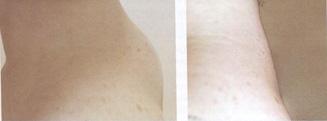 Pre i posle intervencije - ledja u nivou prvih 5 prsljenova