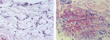 Pre i posle intervencije - masno i vezivno tkivo