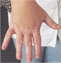 Vitiligo oboljenje