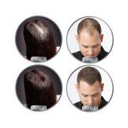 DERMA HAIR Fiberi za kosu 22gr (75 aplikacija)