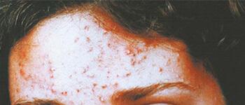 Akne izazvane oboljenjem jetre