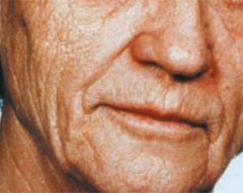 Lice pre tretmana za podmlađivanje