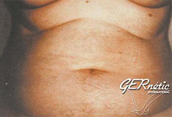 Masne naslage na stomaku