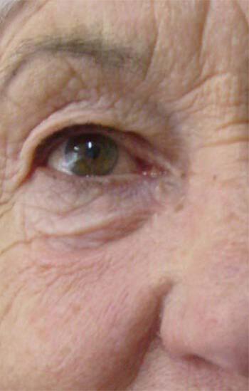Predeo oko očiju - pre tretmana