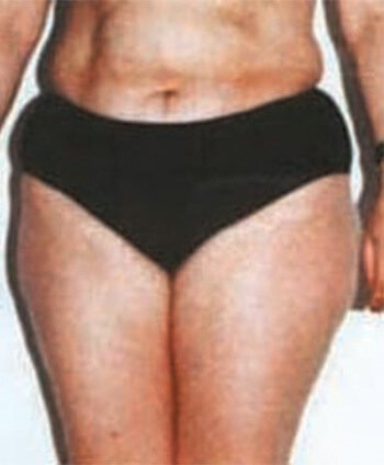 Telo pre Gerentic tretmana za mršavljenje