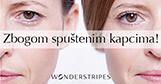 Wonderstripes - silikonske samolepljive trakice za korekciju, podizanje očnih kapaka